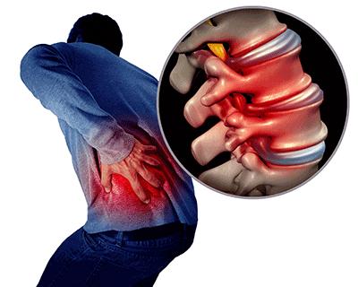 man clutching lower back sharp stabbing pain