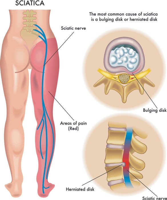 picture of sciatica nerve and pain referral sites on right leg