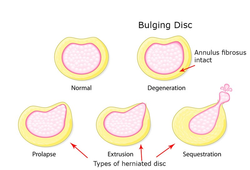 bulging disc and herniated disk types picture