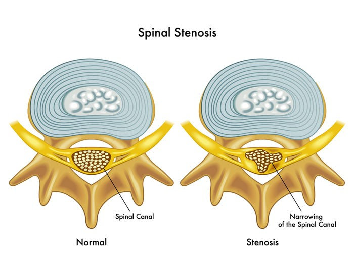 image of spinal stenosis and it's effect on sciatica nerve pain