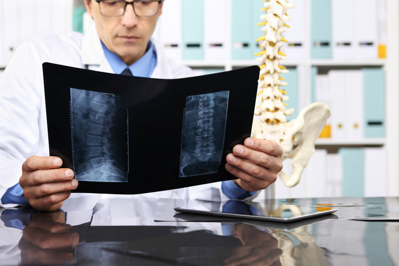 doctor looking at lower back mri